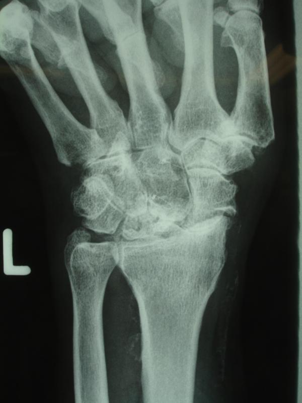 Fingerendgelenke