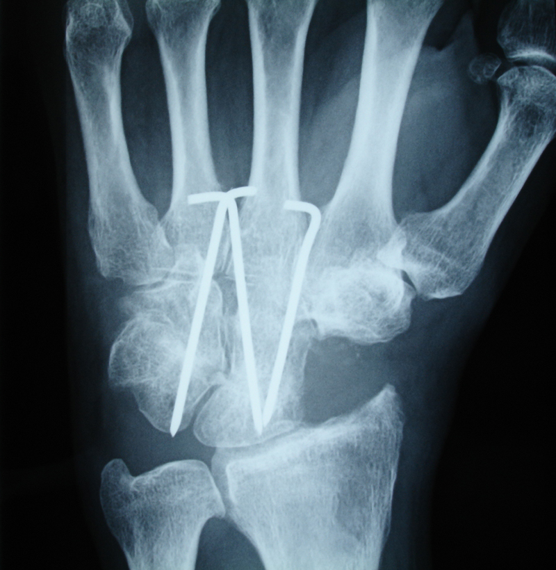 Handgelenksarthrose